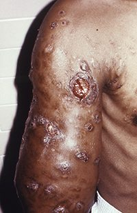 Actinomycetoma of the right upper arm caused by Nocardia brasiliensis