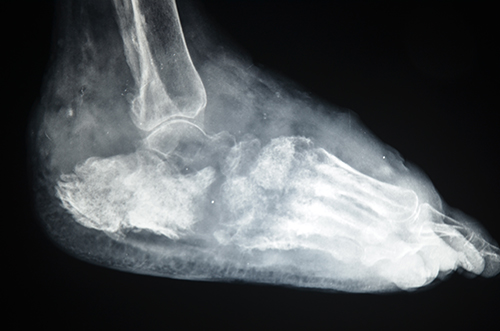 X-ray of foot eumycetoma showing massive soft tissue, periosteal reaction at the lower tibia, and multiple bone cavities involving most of the foot bones. Photo by Dr. Ahmed Fahal, Mycetoma Research Center, Khartoum, Sudan
