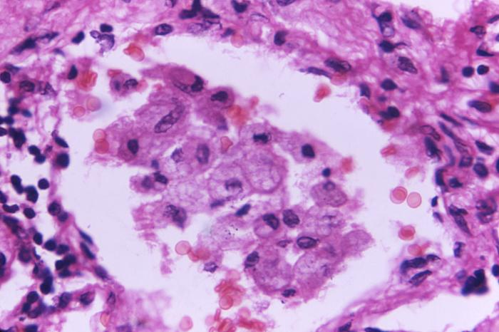 This 800X magnification photomicrograph shows a sample of lung tissue infected with Cryptococcus fungal organisms. Credit: CDC, 1971.