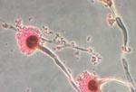 Microscopy of Aspergillus Fumigatus