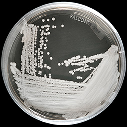 Candida auris grown in a petri dish-Photo Credit: Shawn Lockhart, CDC