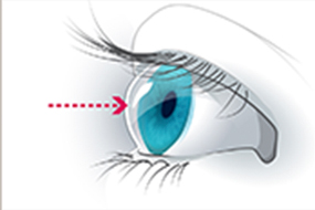 A graphic with an arrow pointed to a cornea.