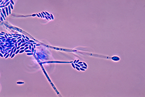 Photomicrograph showing conidiophores and conidia of the fungus Fusarium verticillioides.
