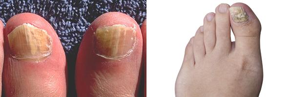 Fungal Nail Infections | Fungal Diseases | CDC