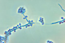 A photomicrograph showing the conidiophores and conidia of the fungus Sporothrix schenckii.