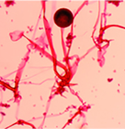 Microscopic view of Rhizopus oryzae