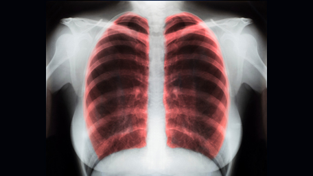 x rays of lungs