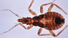 "This is a dorsal view of the ""kissing bug"", Triatoma infestans, a vector for Chagas disease, American trypanosomiasis."