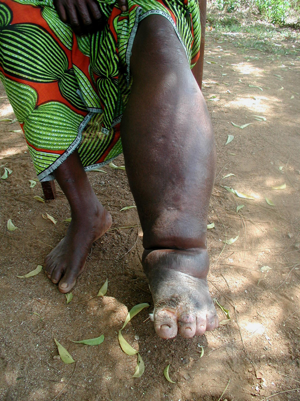 Neglected Tropical Disease in Ghana