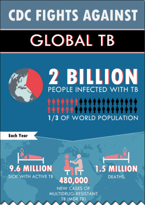 CDC fights against global TB