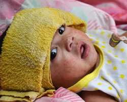 A baby girl with measles in the Phillipines