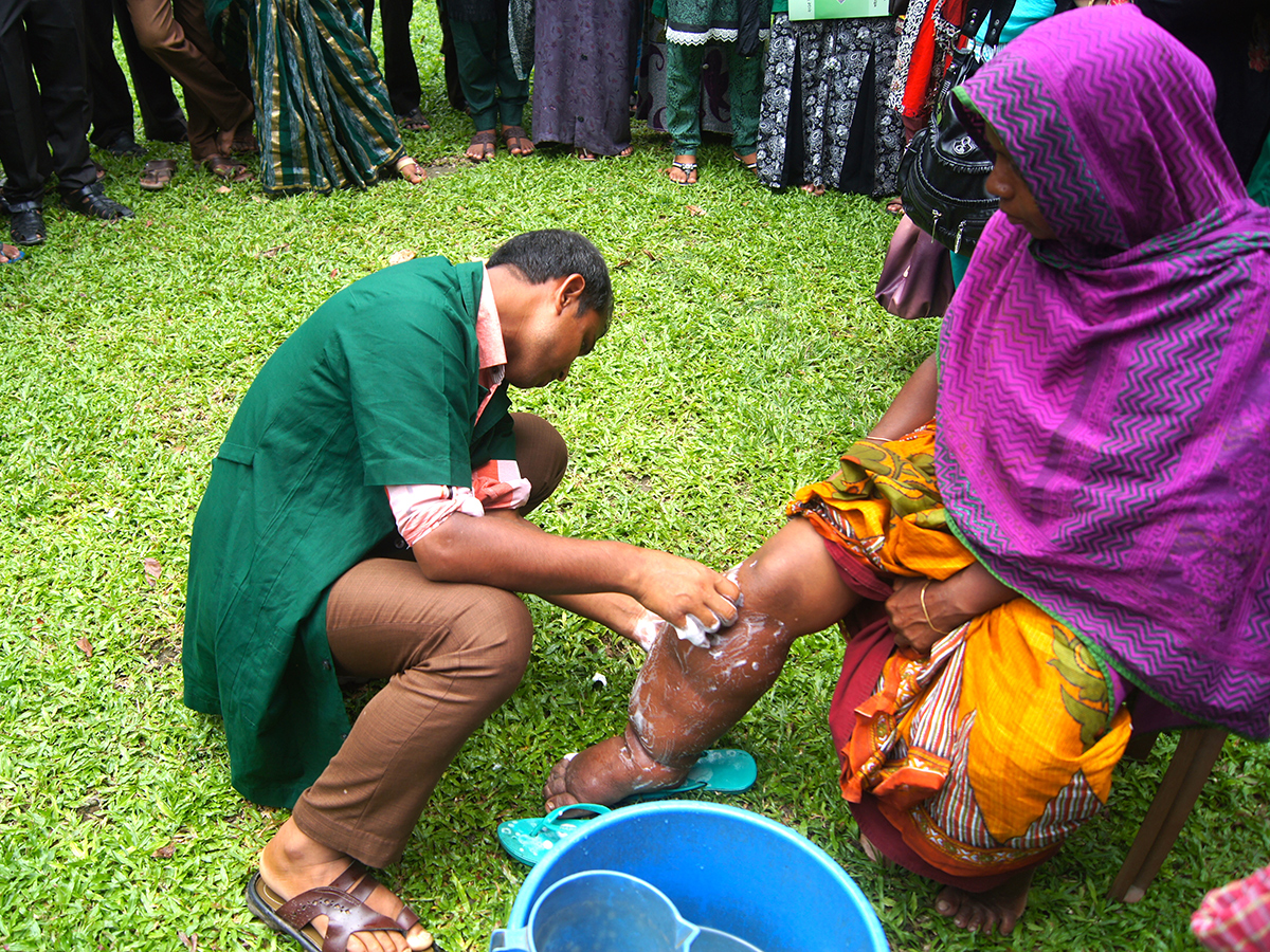 A healthcare worker teaches a woman with lymphatic filariasis in Bangladesh to care for her swollen leg to help prevent disability.