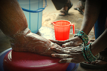 Lymphatic Filariasis in Haiti