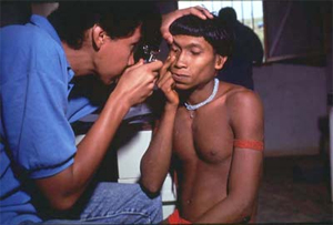 A physician exams the eyes of a male Yanomami indian. The indians attend the clinic for diagnosis and treatment of onchocerciasis and malaria. Credit: WHO/TDR/Mark Edwards