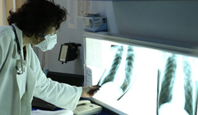 Image of a CDC Scientist looking at a TB lung through an X-Ray