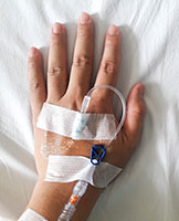 Photo of an iv taped to the top of a hand