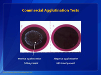 Commercial Agglutination Tests.