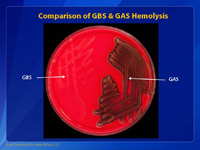 Comparison of GBS & GAS Hemolysis