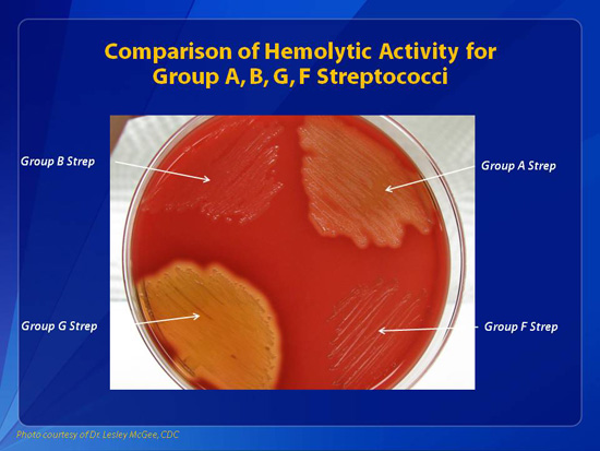 chatting group g streptococcus