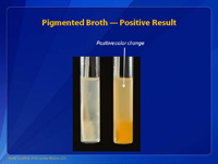 Pigmented Broth — Positive Result
