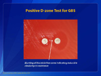 Positive D-zone Test for GBS