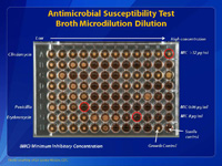 Antimicrobial Susceptibility Test Broth Microdilution Dilution.