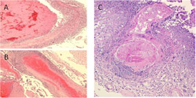 A collage of microscopic views of tissues showing evidence of necrotizing or involving a branch of the basilar artery.