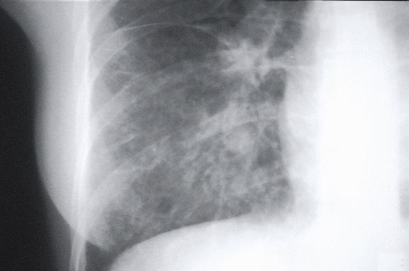 x-ray view of mycoplasm pneumonia