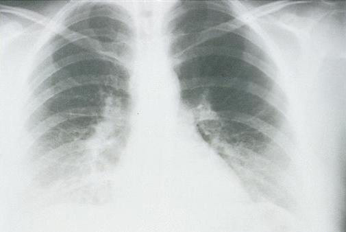 x-ray view of lungs of a patient in the first stage wiht HPS