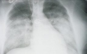 x-ray view of lungs of a patient in the second stage with HPS