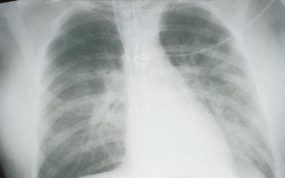 x-ray view of lungs of a patient in the third stage with HPS