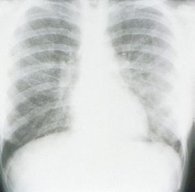 x-ray view of prominent interstitial opacities in mycoplasm pneumonia