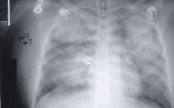 x-ray view of lungs of a patient with severe HPS
