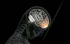 Illustration of a brain hitting the inside of the skull