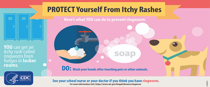Banner saying, Protect Yourself From Itchy Rashes, regarding ringworm fungus in locker rooms.