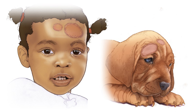 illustration of girl and dog, both with red patches on their skin