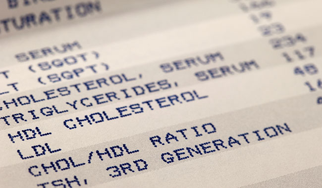 Keeping your cholesterol in check can improve your heart health.