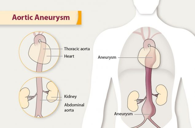 Illustration of an aortic aneurysm.