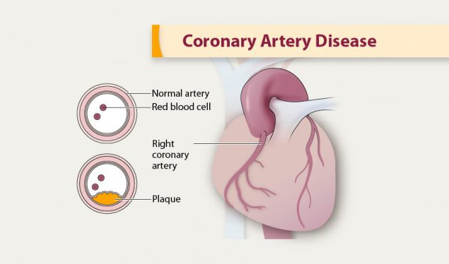 Illustration of coronary artery disease.
