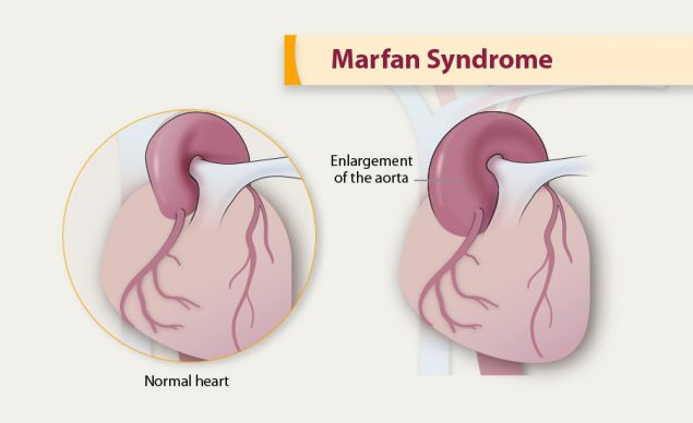 Illustration of Marfan Syndrome.