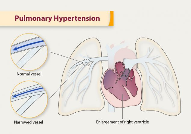 Pulmonary Hypertension | cdc.gov