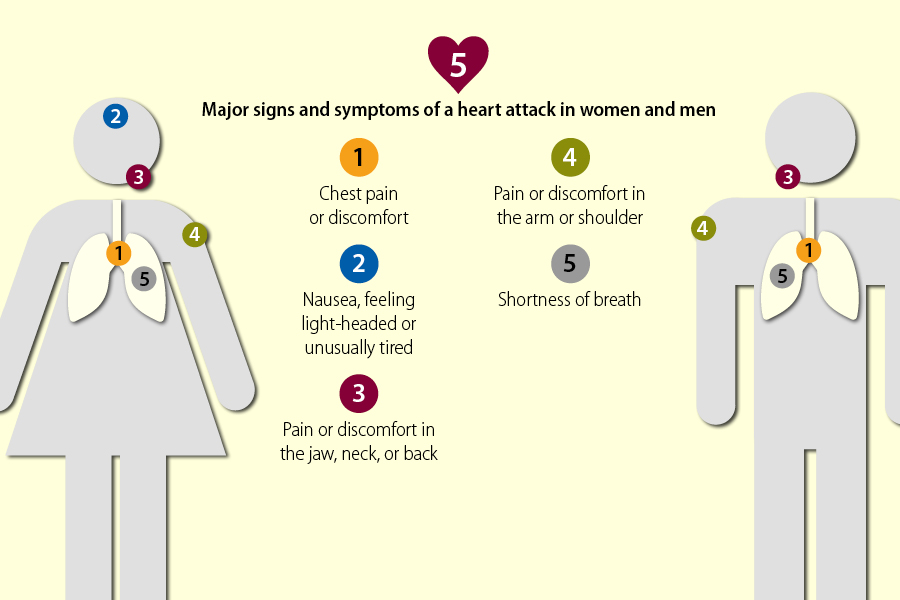 There are five major signs and symptoms of a heart attack in women and men. 1. Chest pain or discomfort; 2. Nausea, feeling light-headed or unusually tired; 3. Pain or discomfort in the jaw, neck, or back; 4. Pain or discomfort in the arm or shoulder; 5. Shortness of breath.