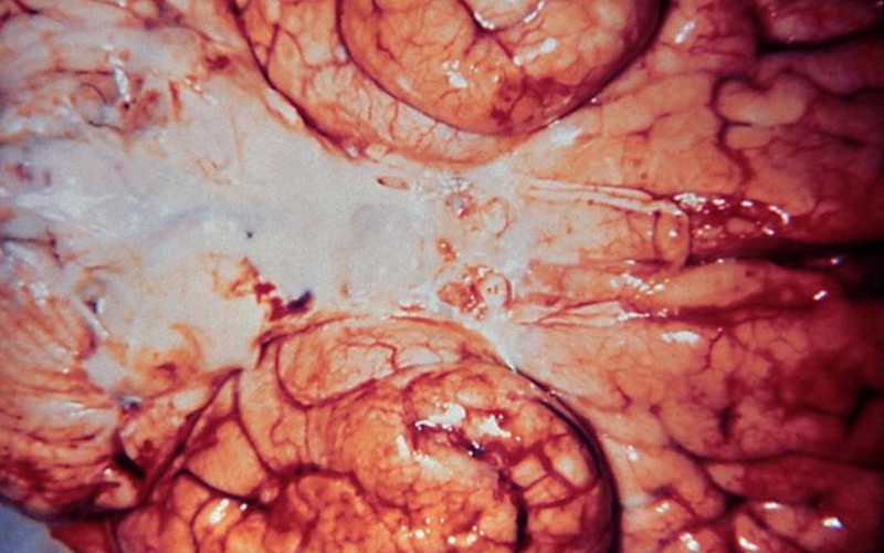 Bottom portion of a brain infected with Gram-negative Haemophilus influenzae bacteria.