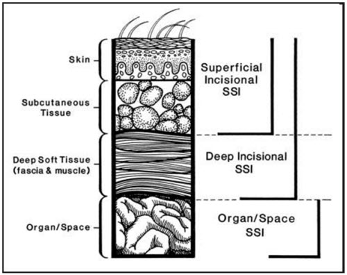 Cross-section of abdominal wall depicting CDC classifications of surgical site infection.
