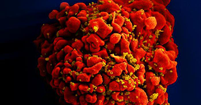 Image of HIV virus