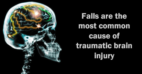 Falls are the most common cause of traumatic brain injury