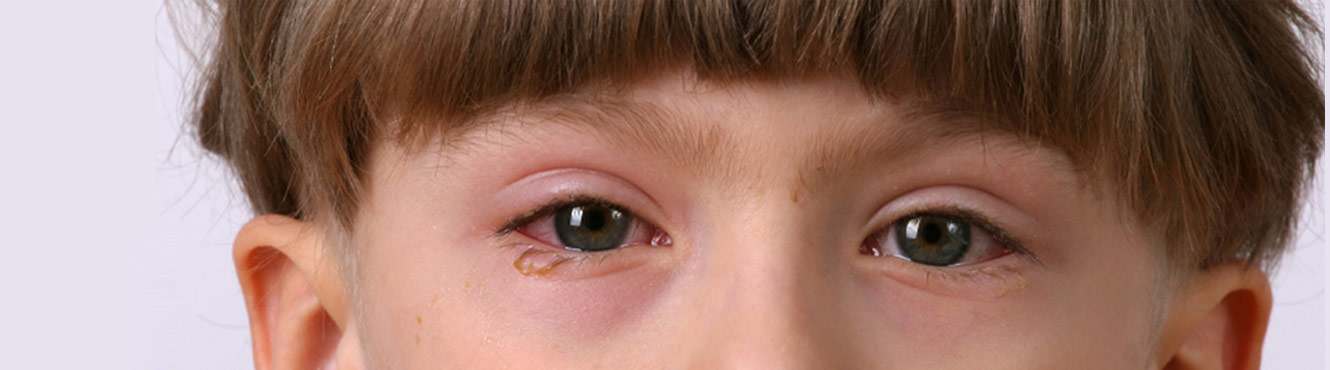 Young boy with pink eye
