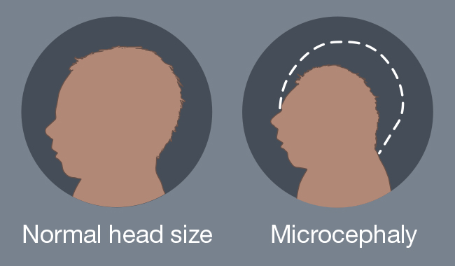 Graphic comparing a normal head size with Microcephaly