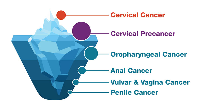 Hpv Protect Your Patients From Hpv Cancers Cdc
