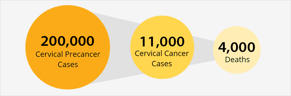 Illustration showing 3 circles with data within each. First circle: 300,000 cervical precancer cases. Second circle: 11,000 cervical cancer cases. Third circle: 4,000 deaths.